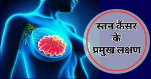 Breast cancer symptoms Hindi