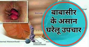piles home remedies Hindi