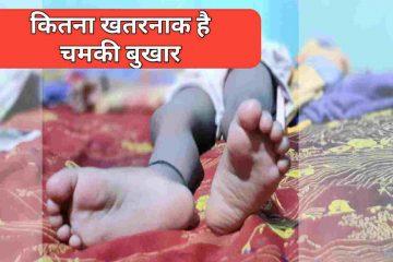 Chamki fever से बिहार में 100 से ज्यादा बच्चों की जाने जा चुकी है, 2014 और 2017 में ये बीमारी बिहार में महामारी फैला चुकी है।